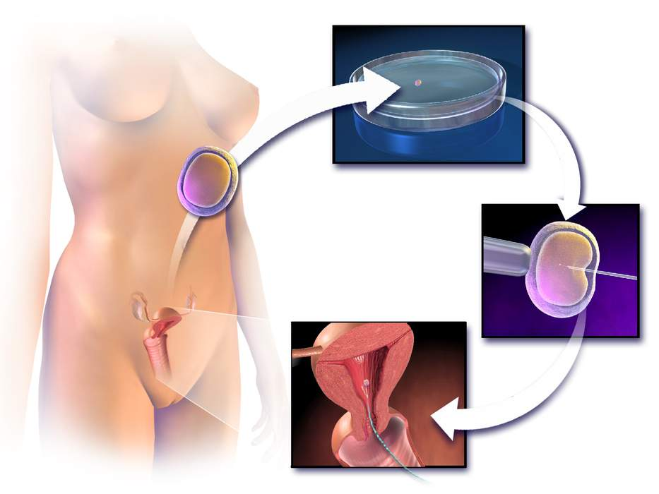 In vitro fertilisation: Assisted reproductive technology procedure